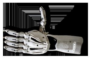 Prothese aus dem 3D-Drucker