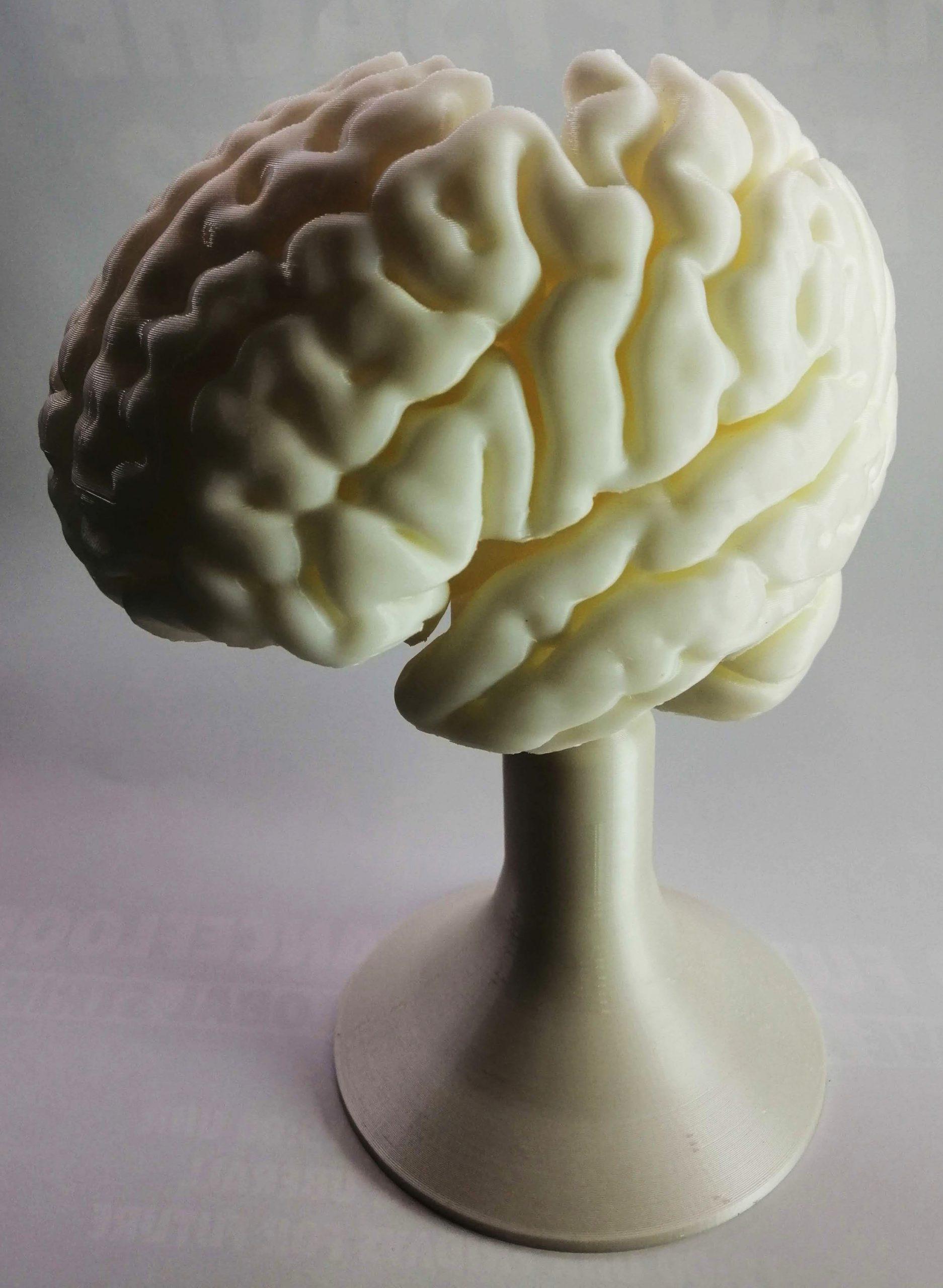 3D-Druck-Projekt Charité Gehirn